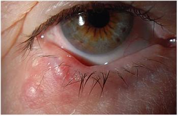 papilloma eye lesion