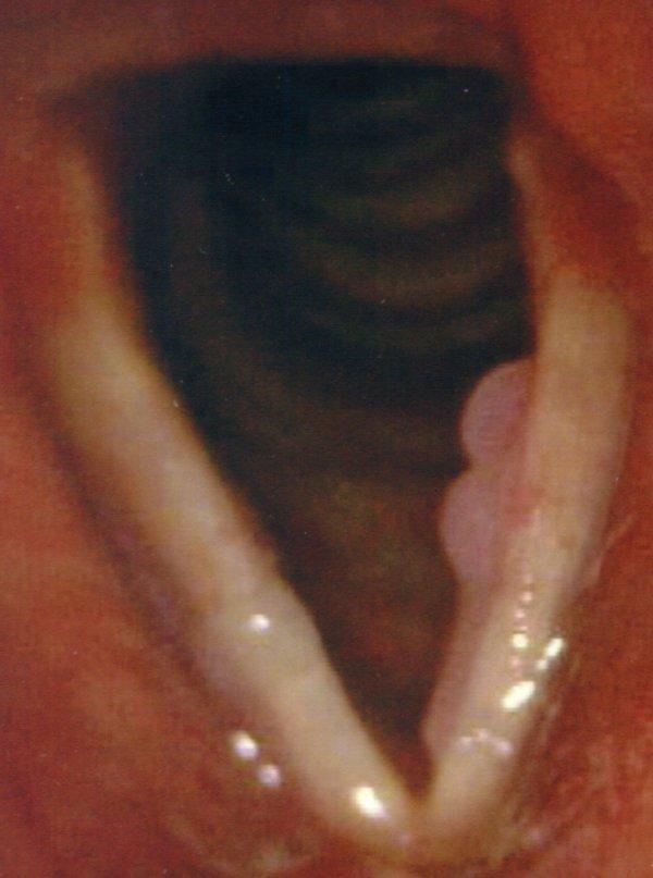 cancerul este un handicap sucuri detoxifiere pret