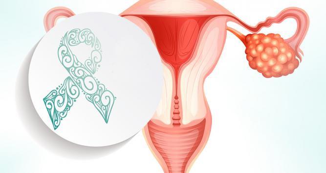 Cancerul ovarian