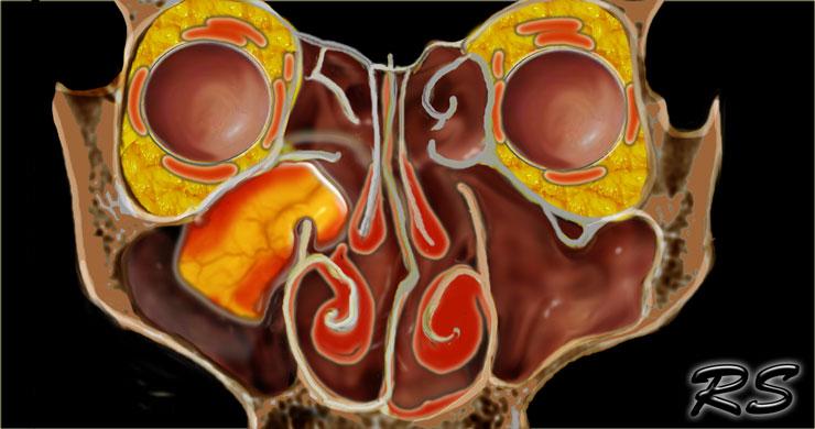 sinus papilloma removal