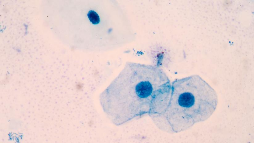 papilloma virus esame citologico dysbiosis bad breath