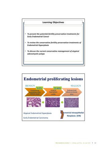 endometrial cancer treatments