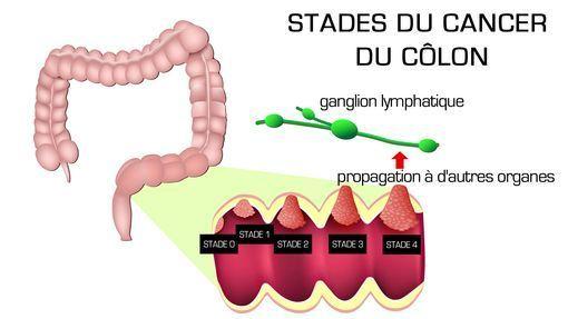 Leucemie Granulocitara Cronica