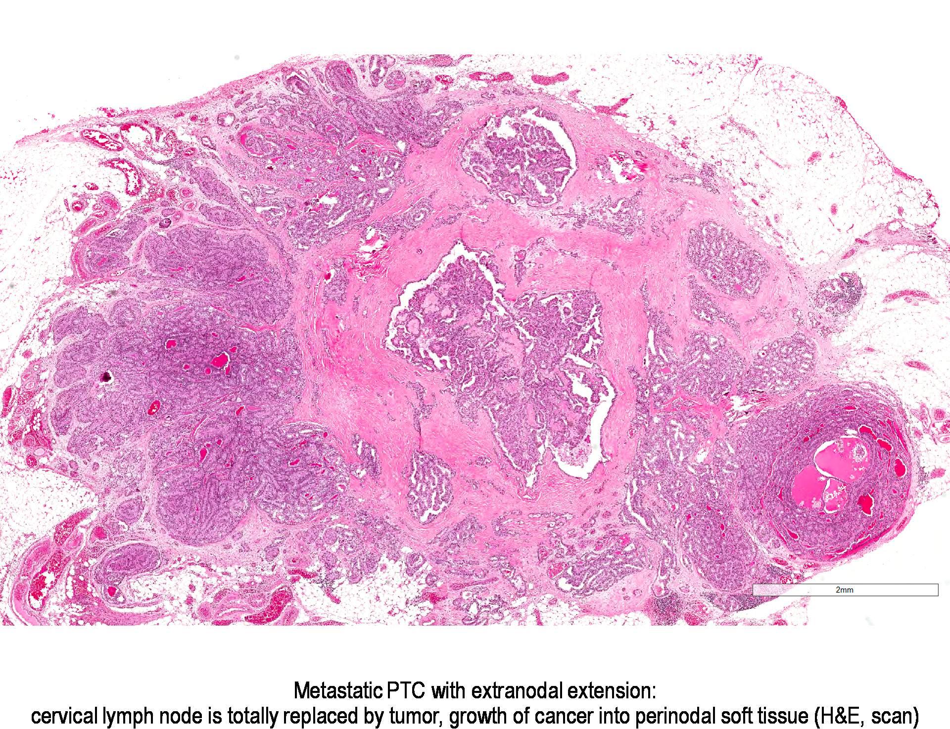 papillary thyroid carcinoma extrathyroidal extension