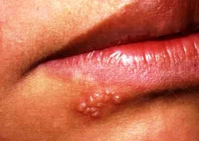 papiloma humano o herpes