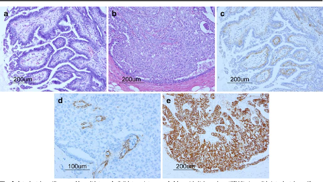 ductal papilloma carcinoma)