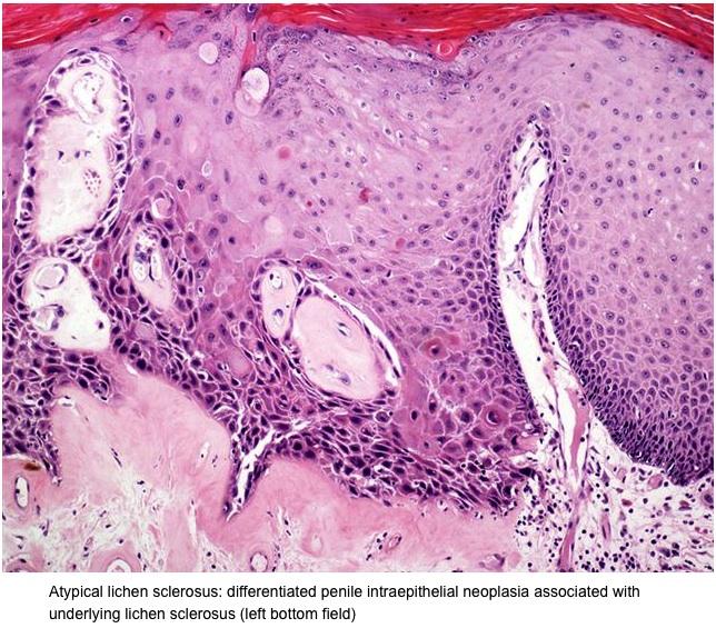 condyloma acuminata pathology outlines)