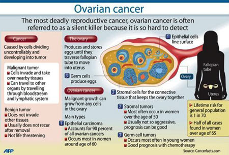 ovarian cancer early detection)