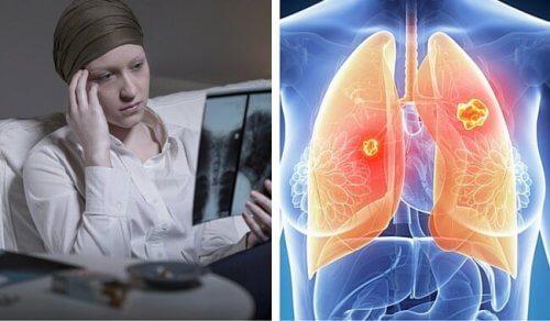 cancere femei