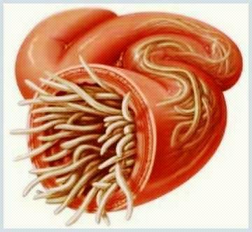 paraziti in corp