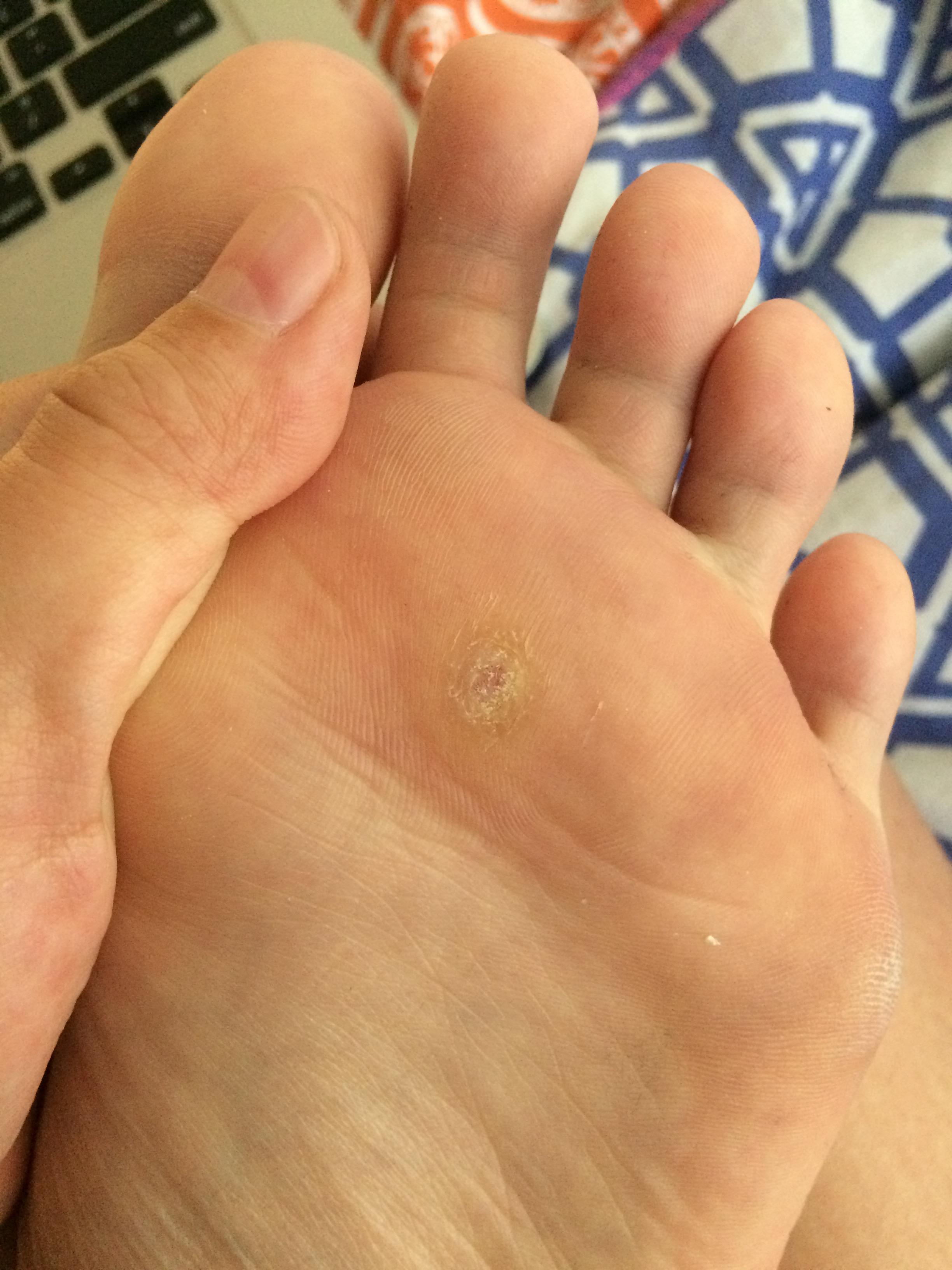 foot verruca duct tape