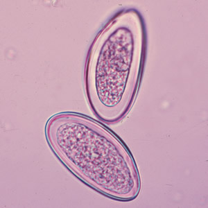 Gambar Vibrio Cholera