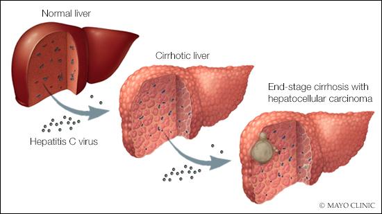 hepatocellular cancer of the liver)