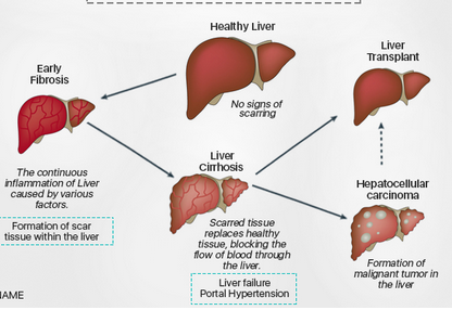 hepatocellular cancer patients