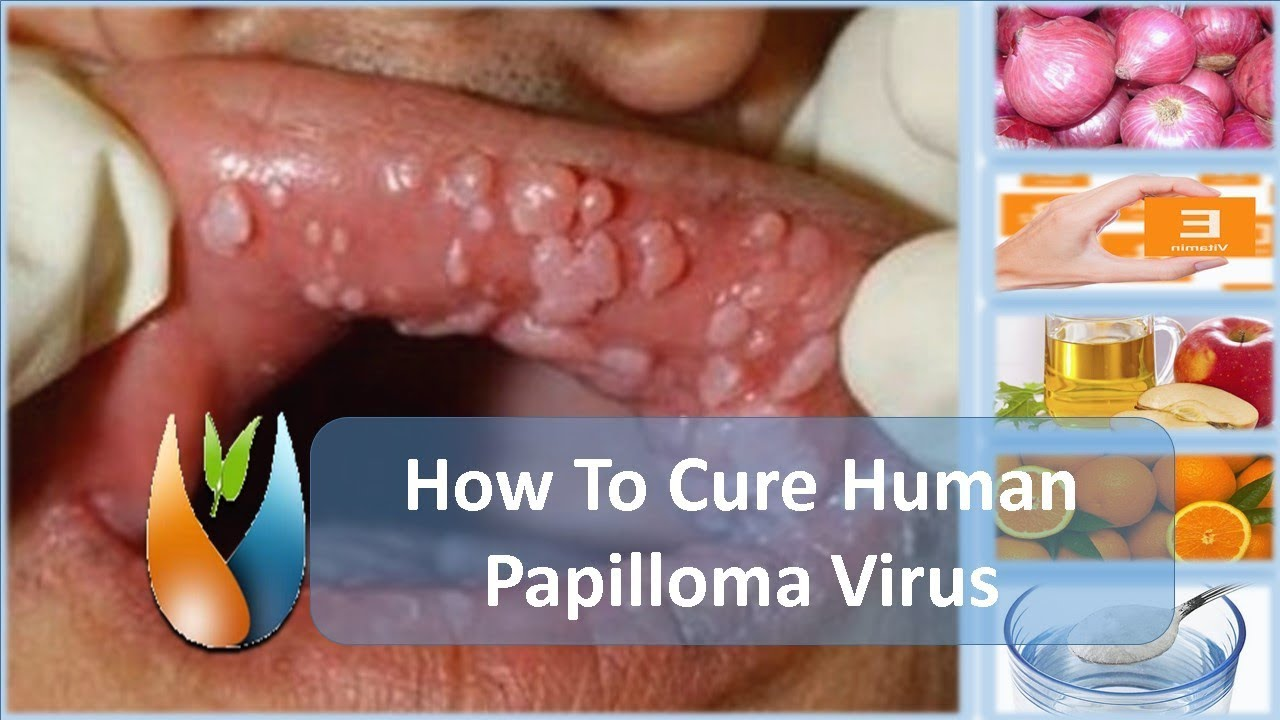 how to cure a human papilloma virus