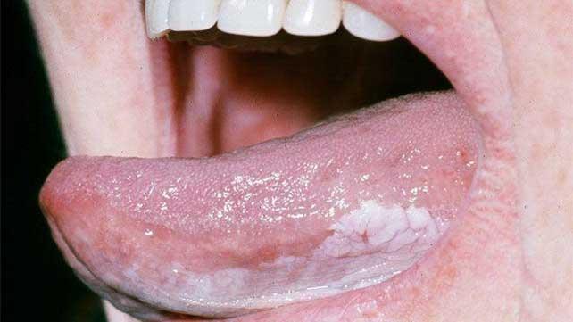 Papilloma sublinguale - Cauze și factori de risc