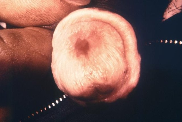 hpv cancer no homem)