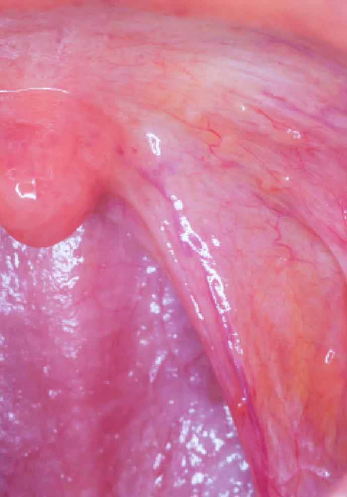 hpv mouth cancer prognosis