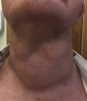 hpv neck mass