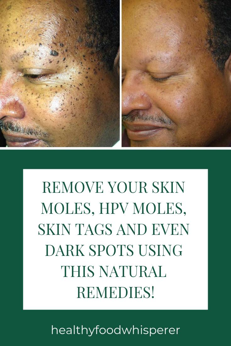 hpv skin moles