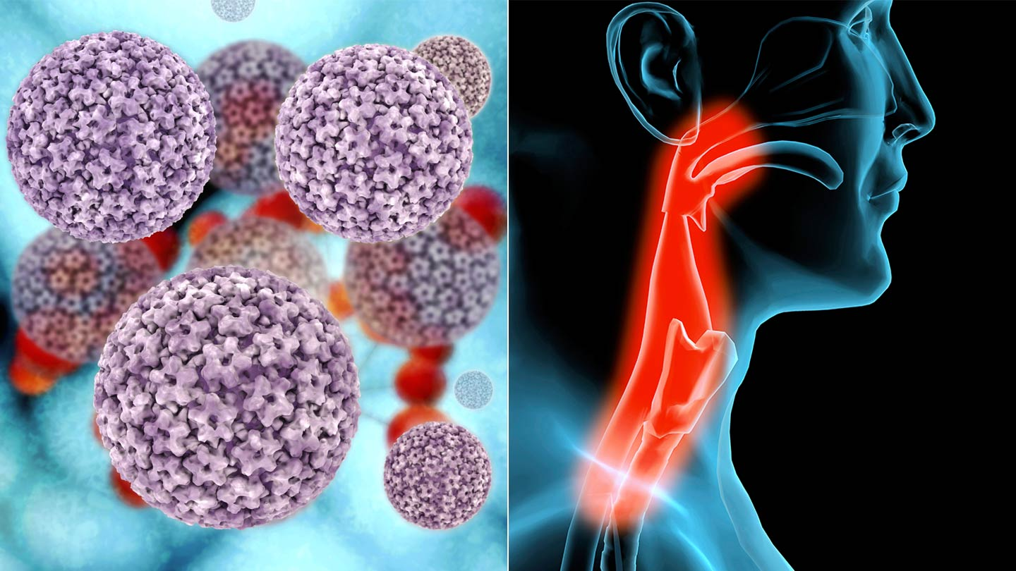 hpv virus causes throat cancer)