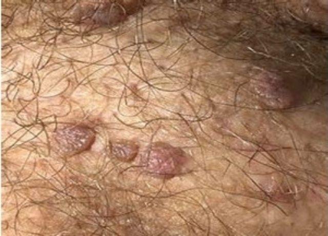 hpv virusu tedavisi nedir