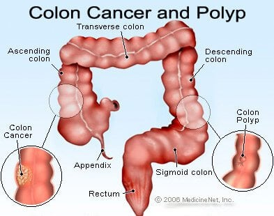 intestinal cancer color)
