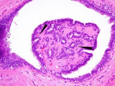intraductal papilloma medscape