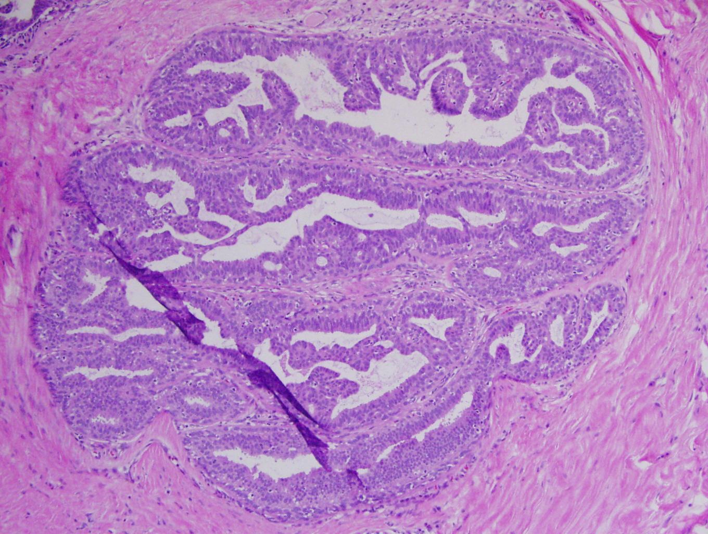 intraductal papillomatosis histology)