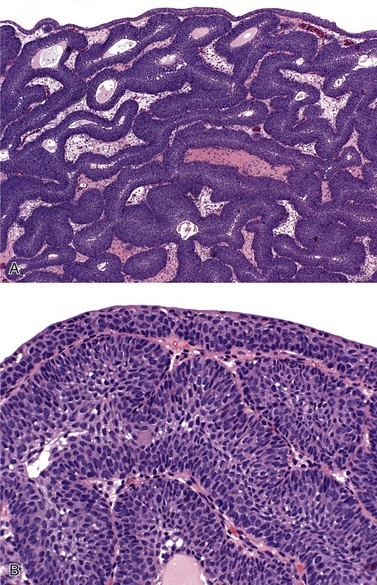 inverted papilloma bladder ck20)