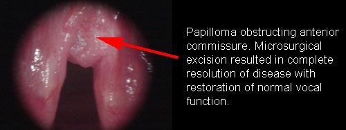 laryngeal papillomas)