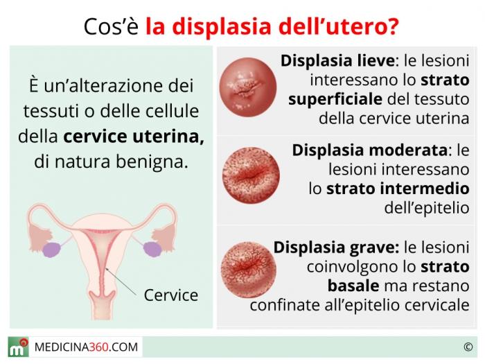 lesione utero papilloma virus)