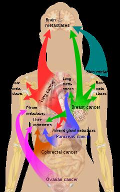 metastatic cancer kaise hota hai)