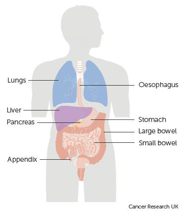 neuroendocrine cancer a