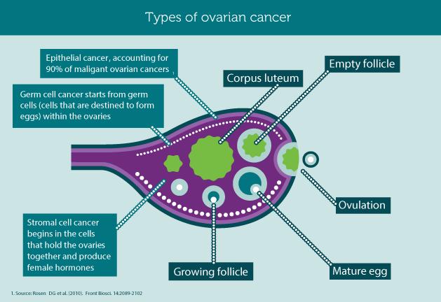 ovarian cancer types)