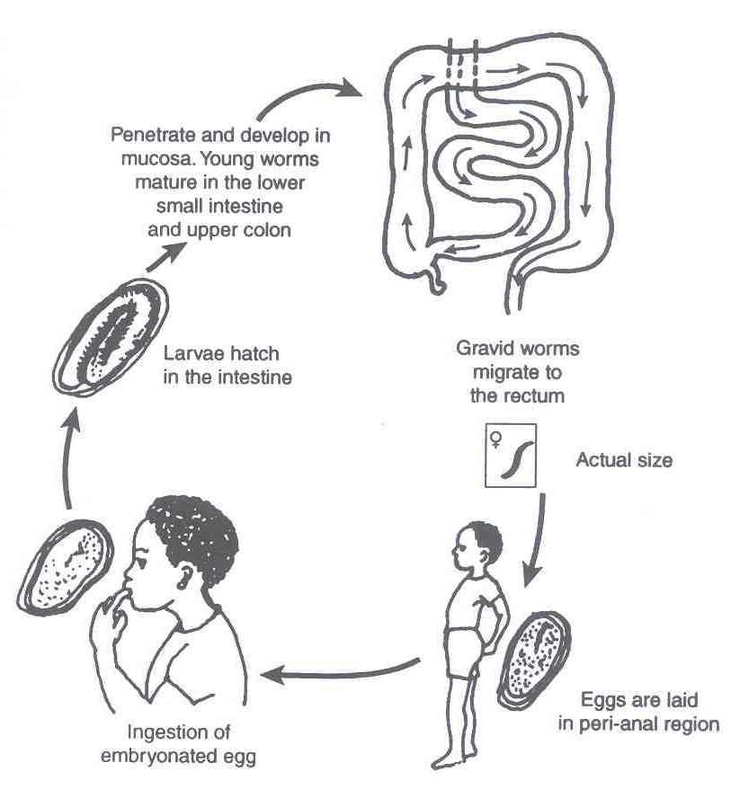 oxyuris vermicularis symptoms)