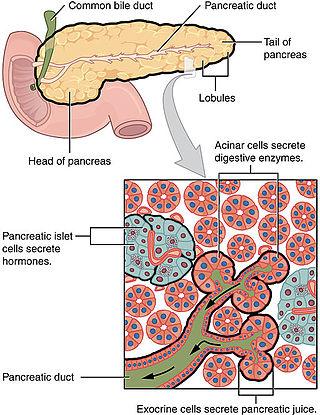 pancreatic cancer adenocarcinoma