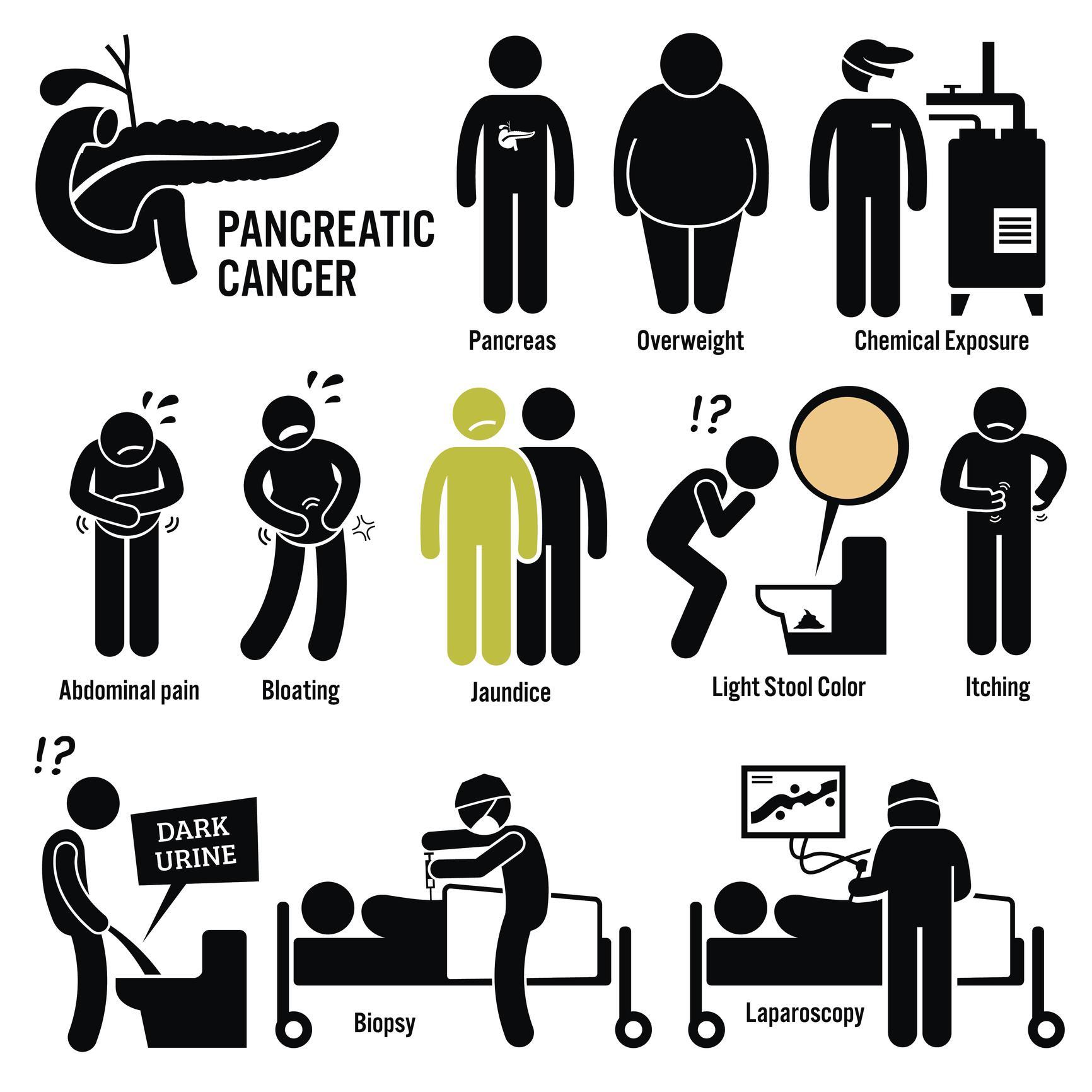 pancreatic cancer bloating)