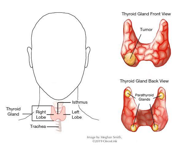 papillary thyroid cancer emedicine