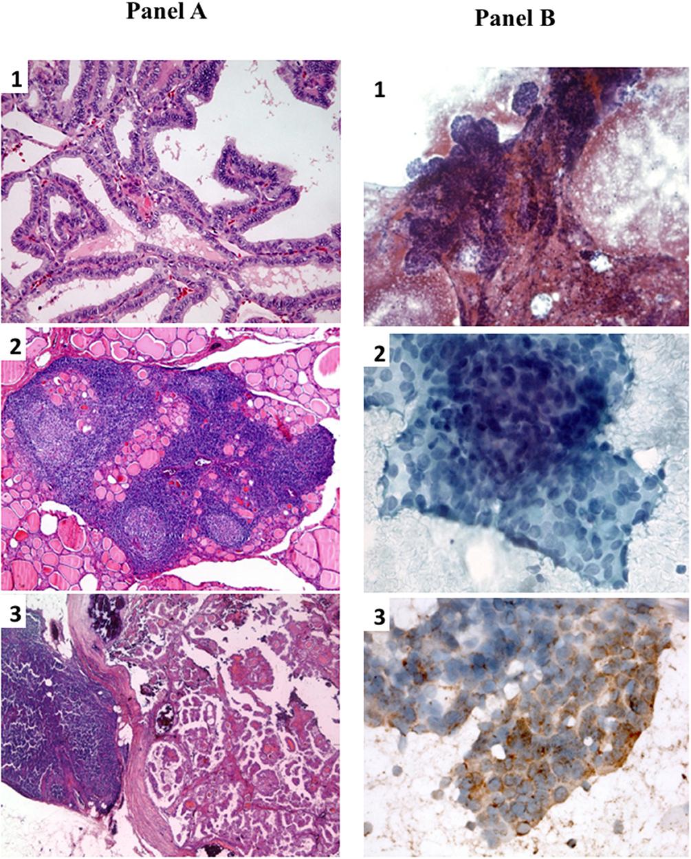 papillary thyroid cancer return)