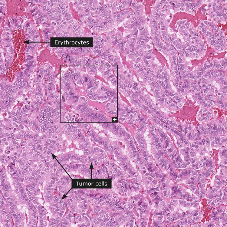 papillary thyroid carcinoma pathology outlines)