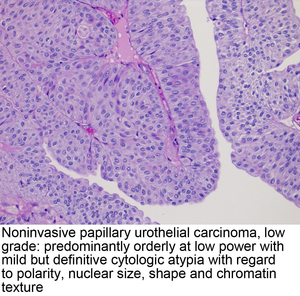 papillary urothelial bladder cancer)