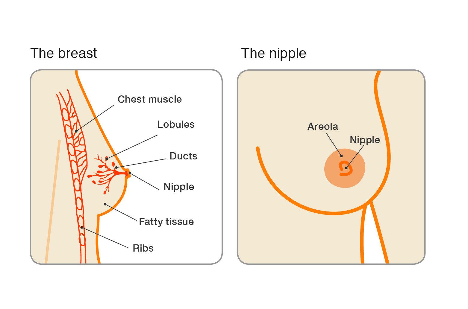 papilloma breast tumors)