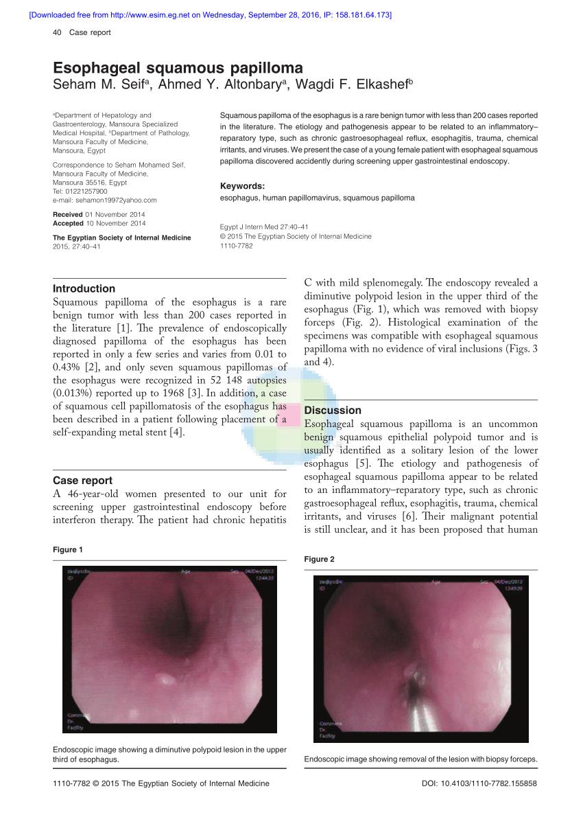 papilloma of esophagus)