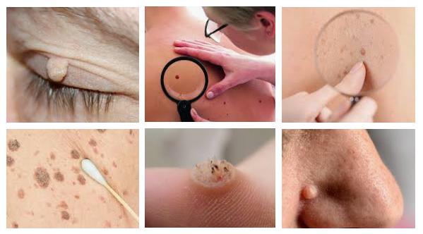 Pt toate femeile care au virusul HPV.. | Comunitatea asspub.ro