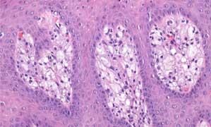 Maxilectomia maxilară medială pentru papilomul inversat