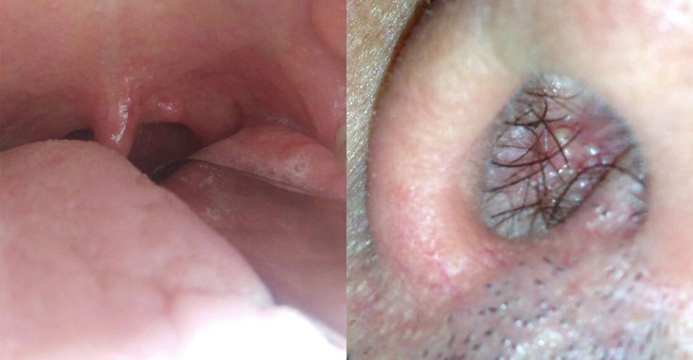 papilloma virus e naso)