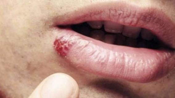 papiloma humano en la boca de un nino)