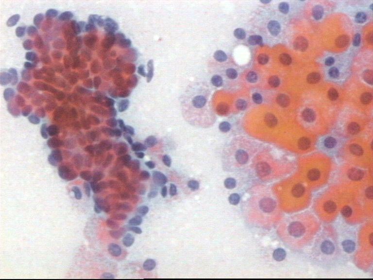 papiloma intraductal com metaplasia apocrina