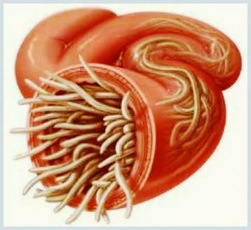paraziti intestinali in scaun
